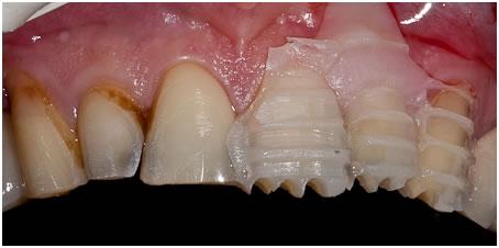 Отбеливание зубов под виниры