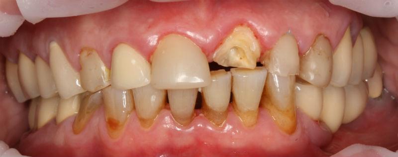 гниет зуб под коронкой