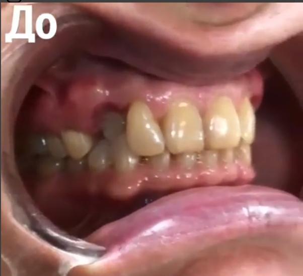 Удлинение коронковой части зуба лазером