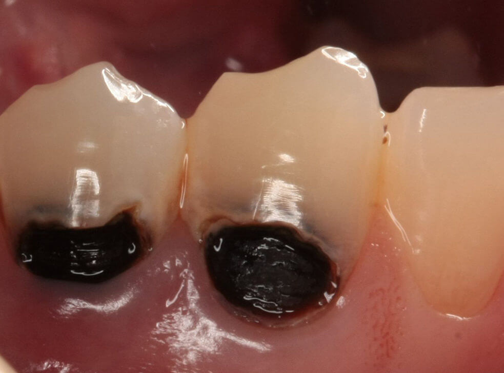 Лечение кариеса корня зуба в Москве