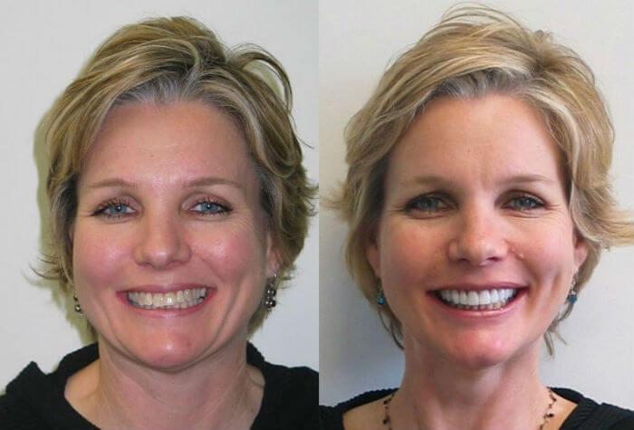 покрытие винирами и коронками тетрациклиновых зубов