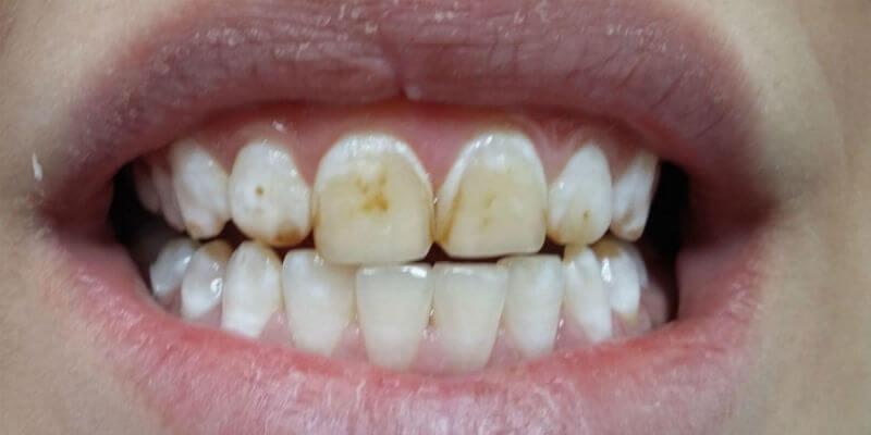 лечение эрозии твердых тканей зуба