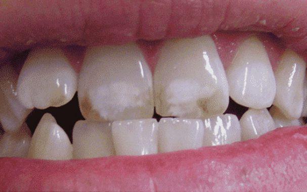 эрозия эмали зубов
