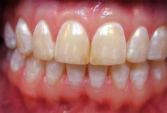 диагностика эрозии эмали зуба