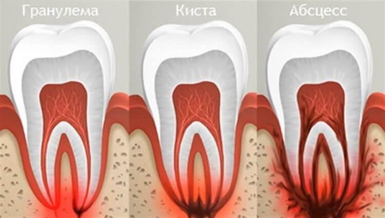 гранулема. киста, абсцесс на корне зуба