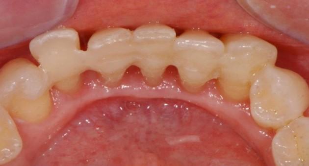 Шинирование зубов лентой
