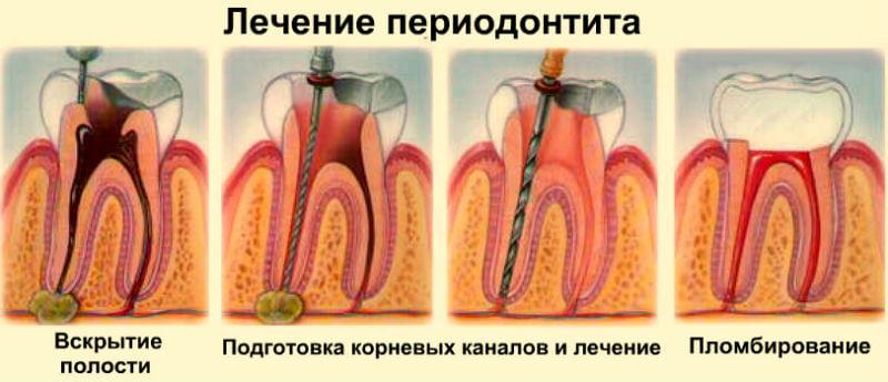 Этапы лечения каналов при периодонтите зуба